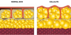 Diagram-of-Cellulite