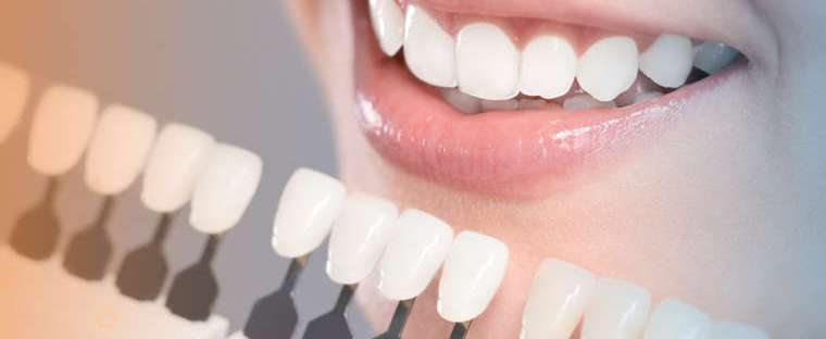 RONA RABAH DENTAL CLINIC OFFERS A COMPLETE SMILE MAKEOVER